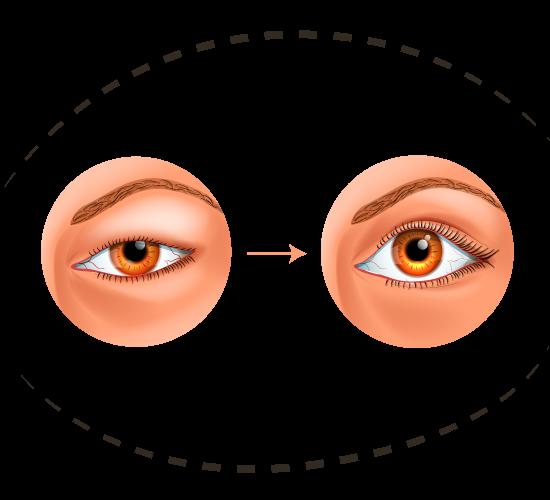 Chirurgie esthétique des yeux et du regard